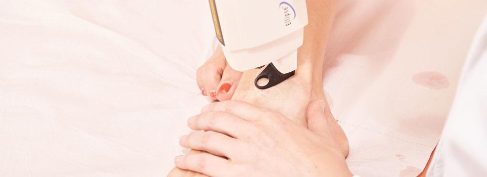 odstranjevanje kapilar in žilnih sprememb