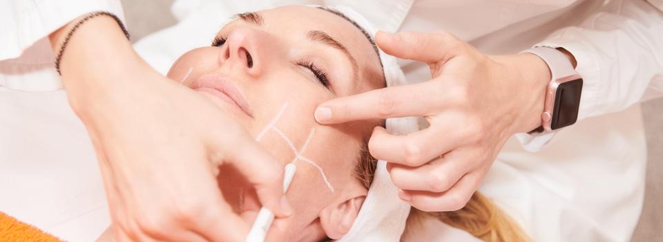 Lasersko zdravljenje kože
